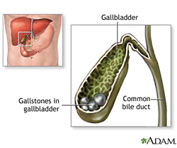 Gallstones in Gallbladder